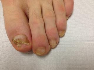 Apparence des ongles 2 mois post,traitement, soit le 25 juillet 2013, le 10 septembre 2013 et finalement le 26 novembre 2013.