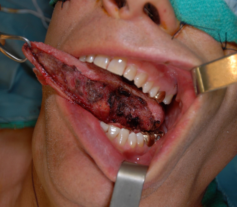 Des douleurs dentaires qui durent : Cancer de la bouche