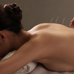 Traiter la dépression par l'acupuncture