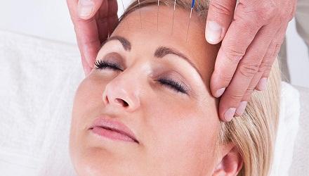 Migraines, maux de tête et acupuncture