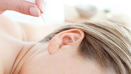 L'acupuncture pour retrouver son poids santé