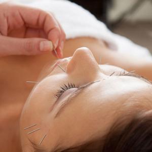 L'acupuncture pour traiter les allergies