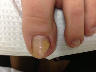Le microorganisme végétal sur les pieds de la fissure sur les doigts