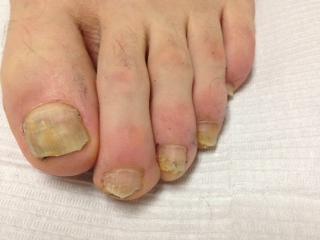 Magazine le patient le laser une r volution dans le traitement de l 39 onychomycose - Coupe des ongles de pieds ...