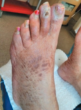 magazine le patient insuffisance r nale en quoi les pieds sont ils affect s. Black Bedroom Furniture Sets. Home Design Ideas